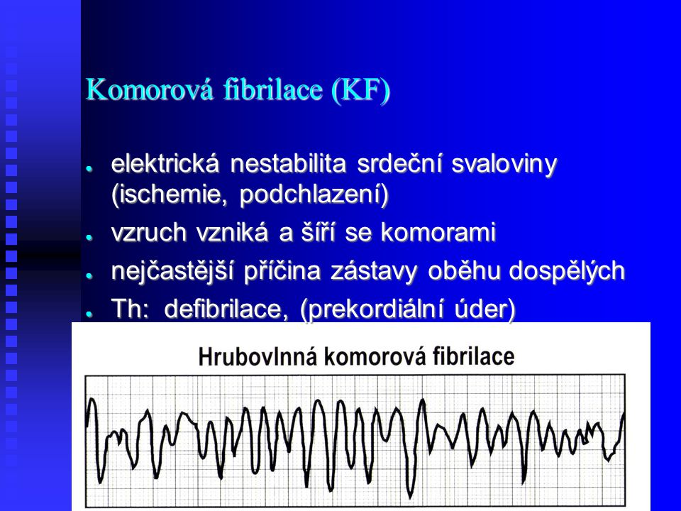 Komorová fibrilace (KF)