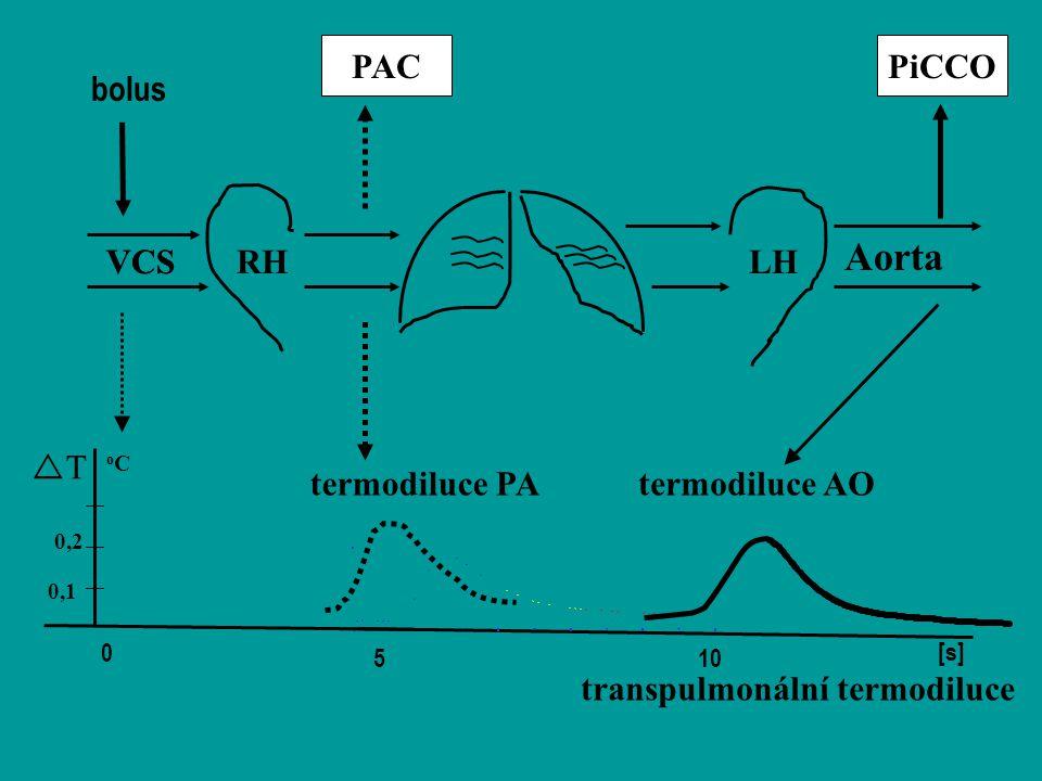 Aorta PAC PiCCO bolus VCS VCS RH LH T termodiluce PA termodiluce AO