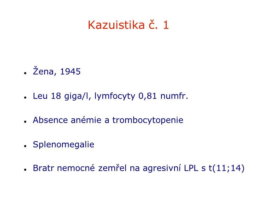 Kazuistika č. 1 Žena, 1945 Leu 18 giga/l, lymfocyty 0,81 numfr.