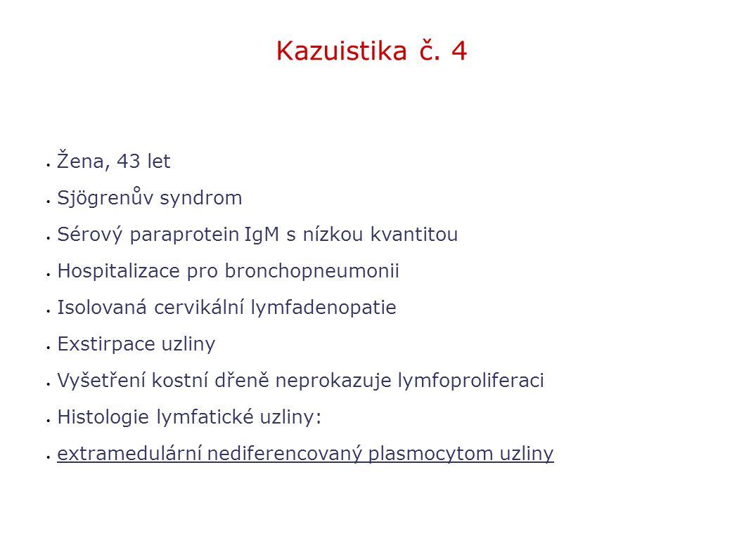 Kazuistika č. 4 Žena, 43 let Sjögrenův syndrom
