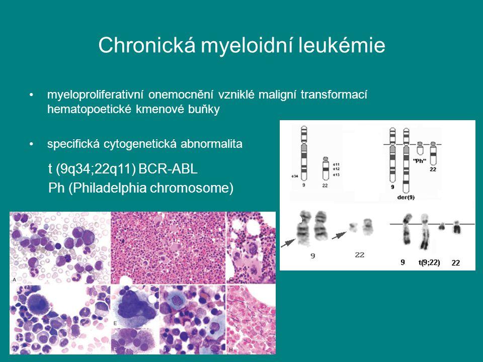 Chronická myeloidní leukémie