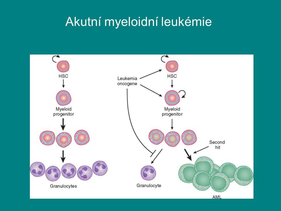 Akutní myeloidní leukémie