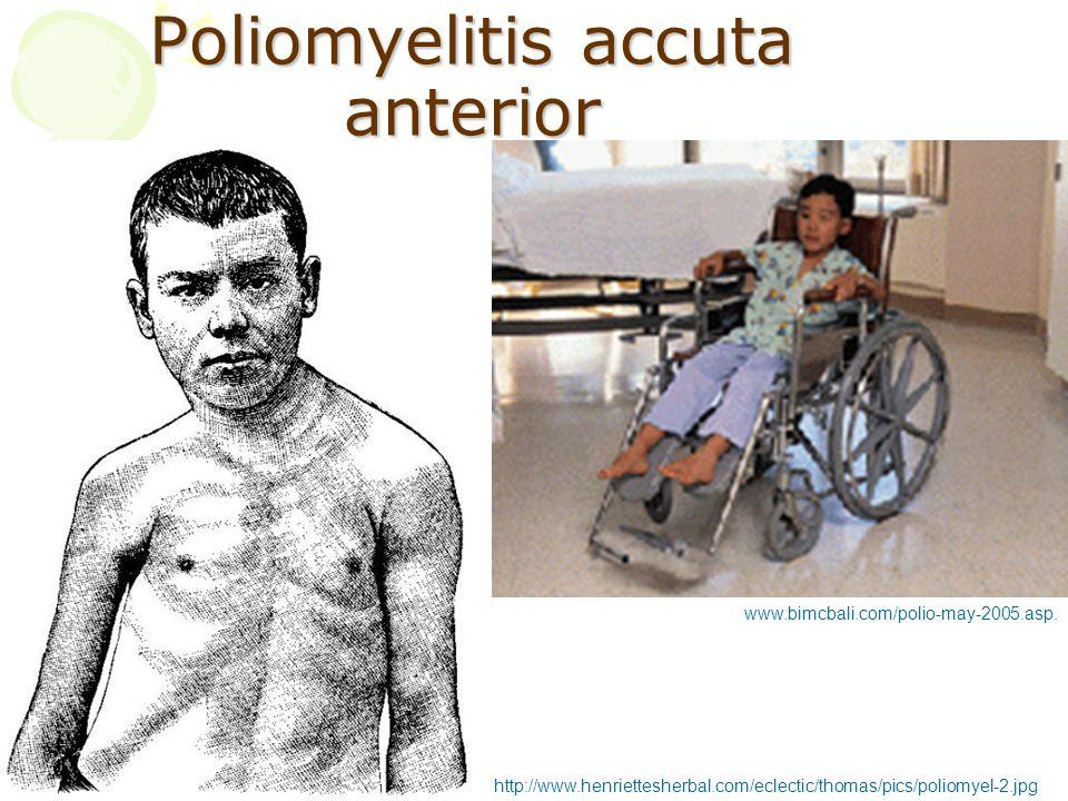 Poliomyelitis accuta anterior