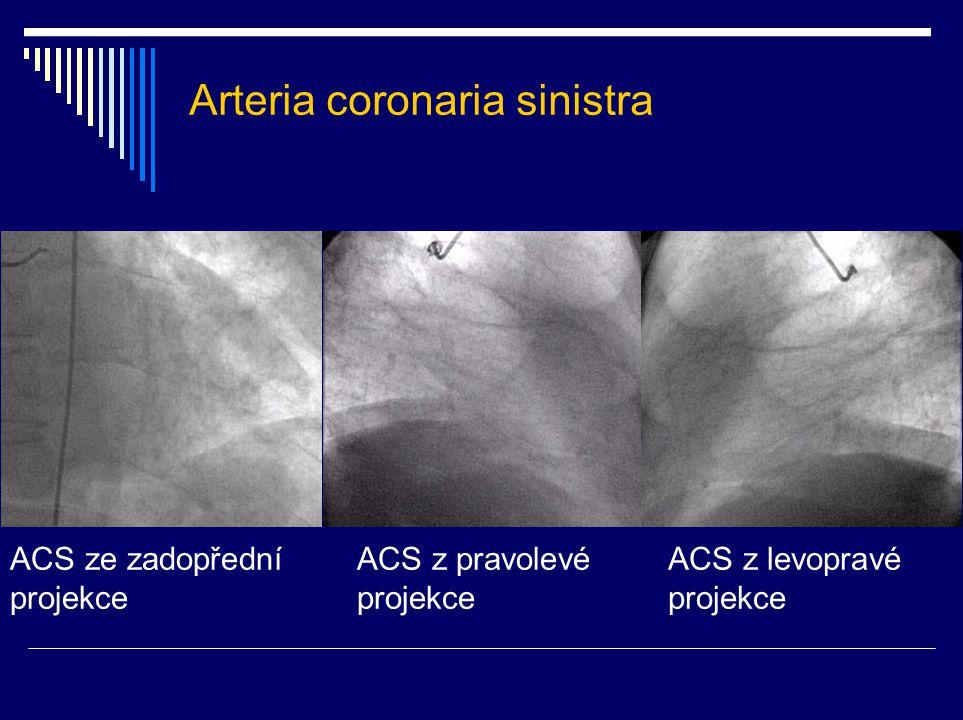 Arteria coronaria sinistra