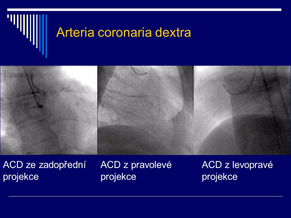 Arteria coronaria dextra
