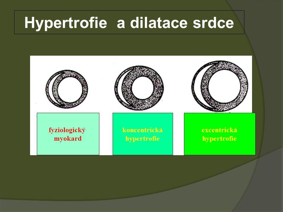 Hypertrofie a dilatace srdce