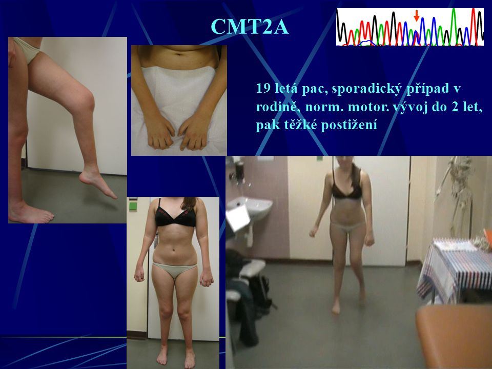 CMT2A 19 letá pac, sporadický případ v rodině, norm. motor. vývoj do 2 let, pak těžké postižení