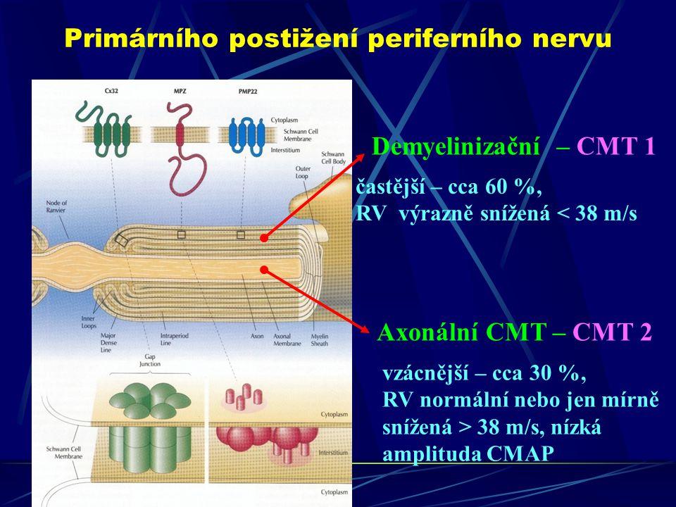 Primárního postižení periferního nervu