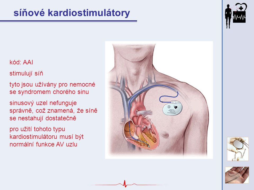 síňové kardiostimulátory