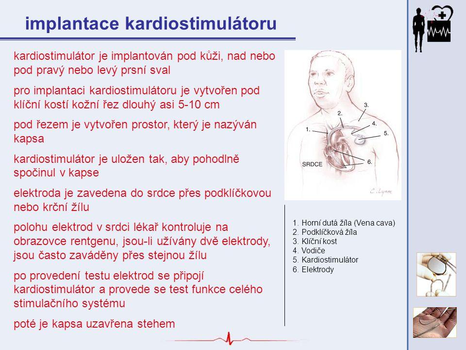 implantace kardiostimulátoru
