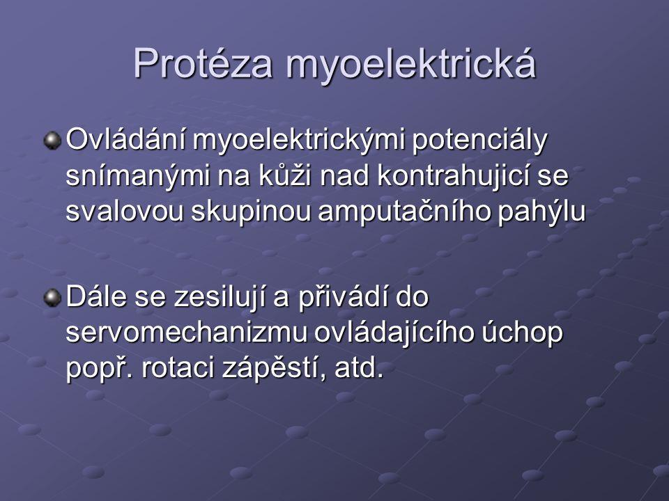 Protéza myoelektrická
