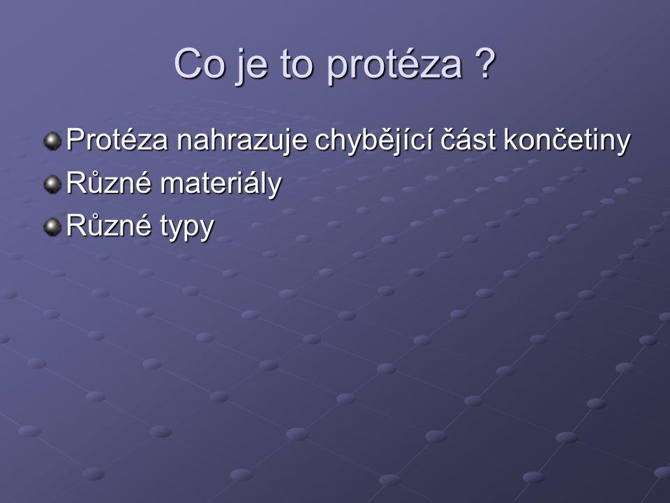 Co je to protéza Protéza nahrazuje chybějící část končetiny