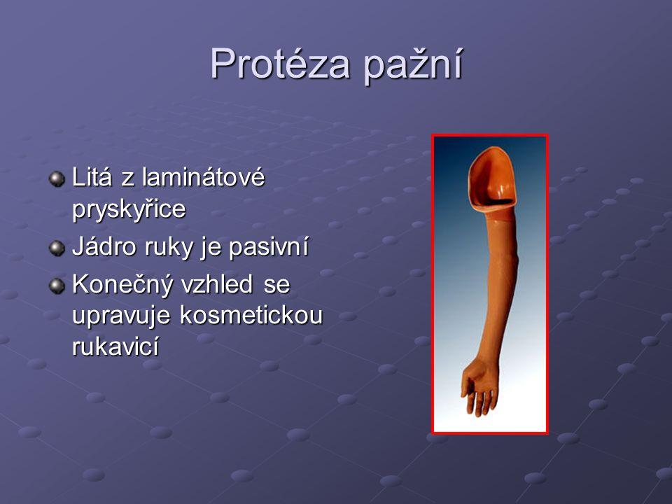 Protéza pažní Litá z laminátové pryskyřice Jádro ruky je pasivní