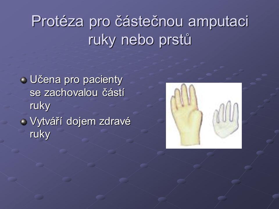 Protéza pro částečnou amputaci ruky nebo prstů