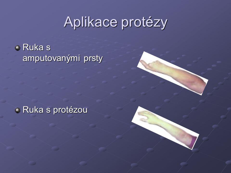 Aplikace protézy Ruka s amputovanými prsty Ruka s protézou