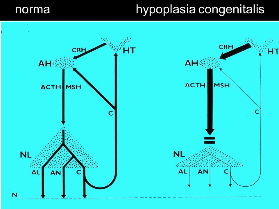 hypoplasia congenitalis
