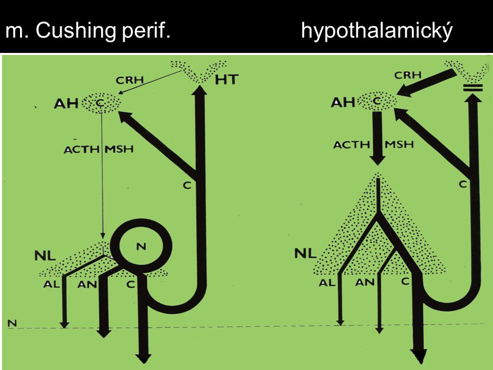 m. Cushing perif. hypothalamický