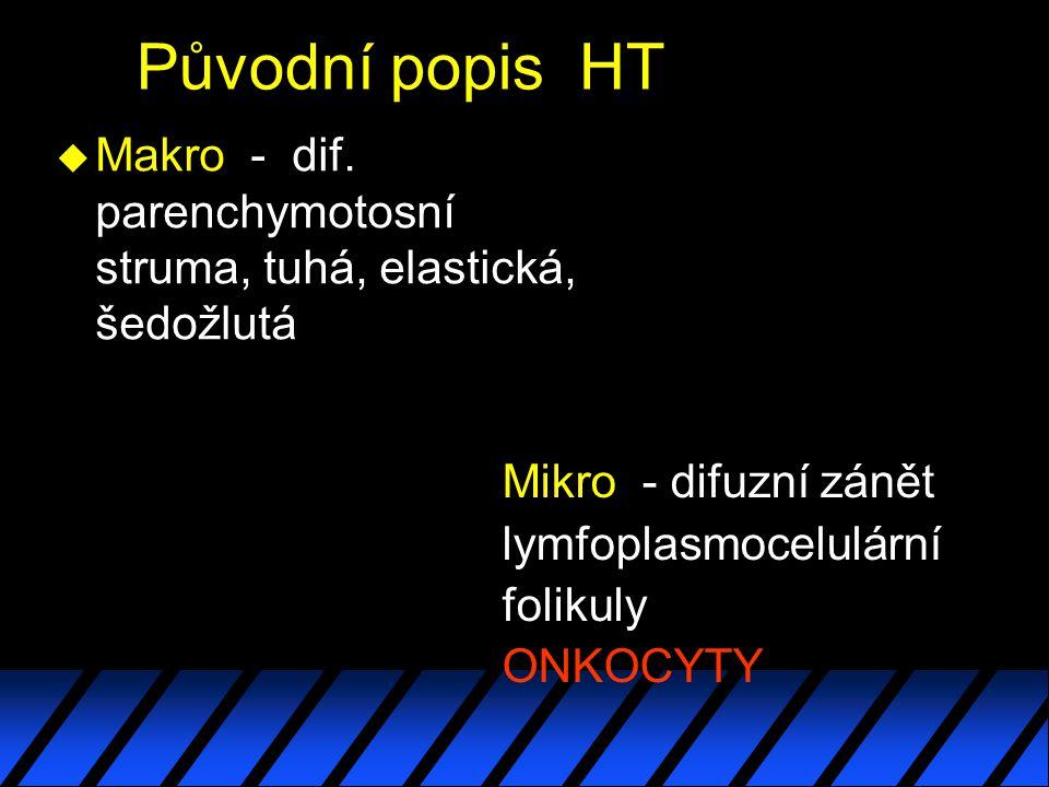 Původní popis HT Makro - dif. parenchymotosní struma, tuhá, elastická, šedožlutá. Mikro - difuzní zánět.