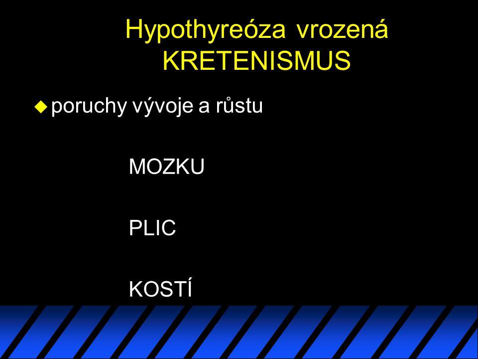 Hypothyreóza vrozená KRETENISMUS