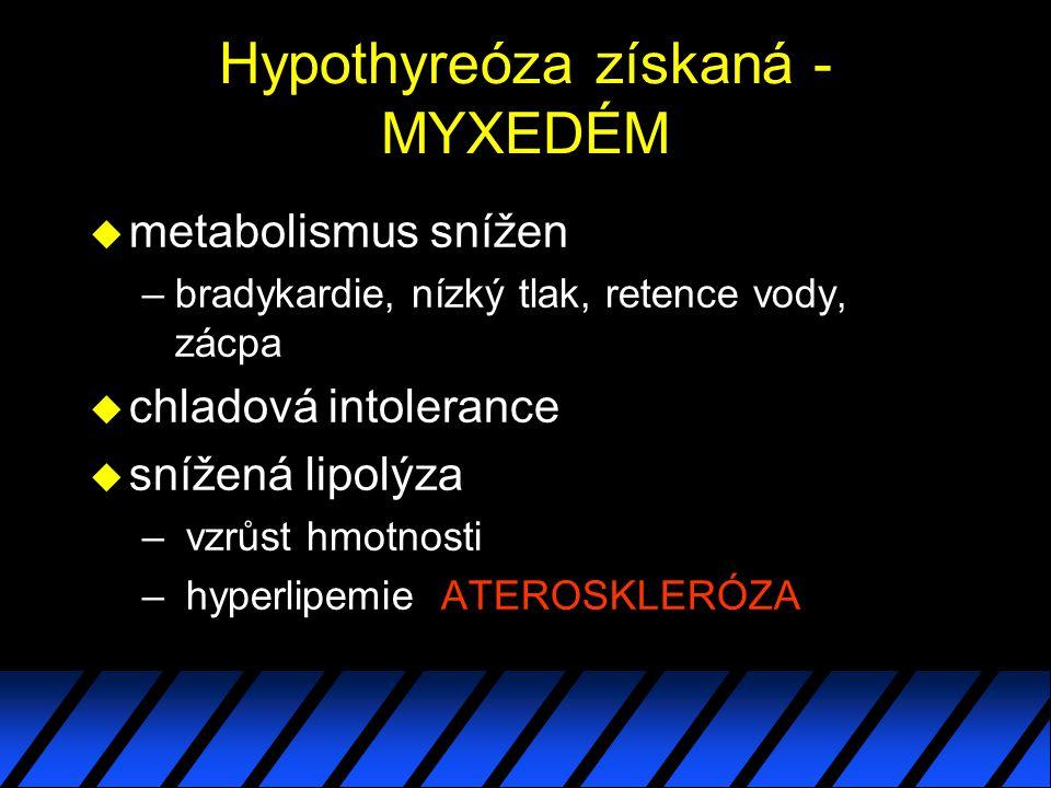 Hypothyreóza získaná -MYXEDÉM