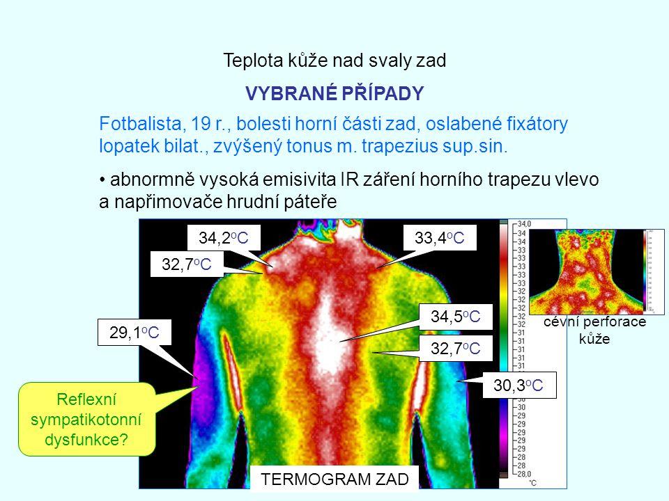 Teplota kůže nad svaly zad VYBRANÉ PŘÍPADY