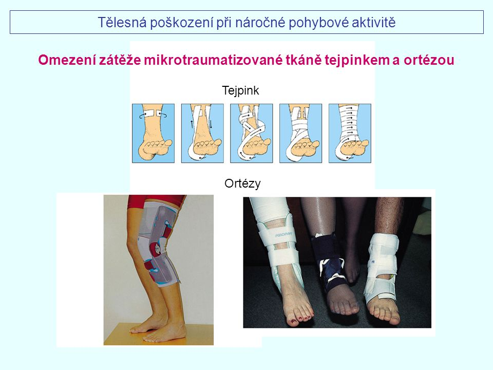 Omezení zátěže mikrotraumatizované tkáně tejpinkem a ortézou