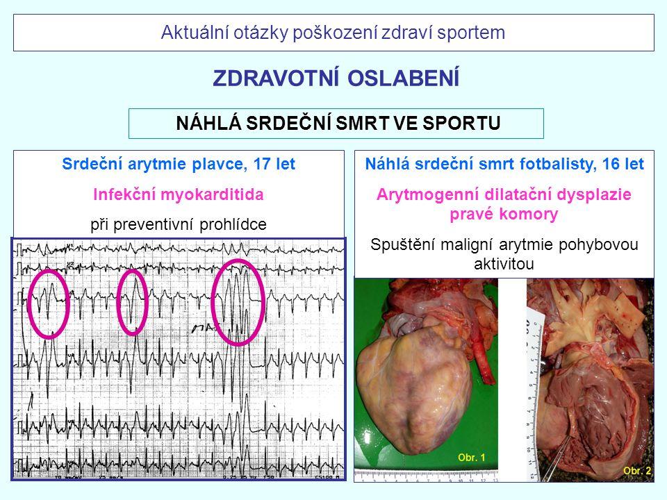 Infekční myokarditida Arytmogenní dilatační dysplazie pravé komory