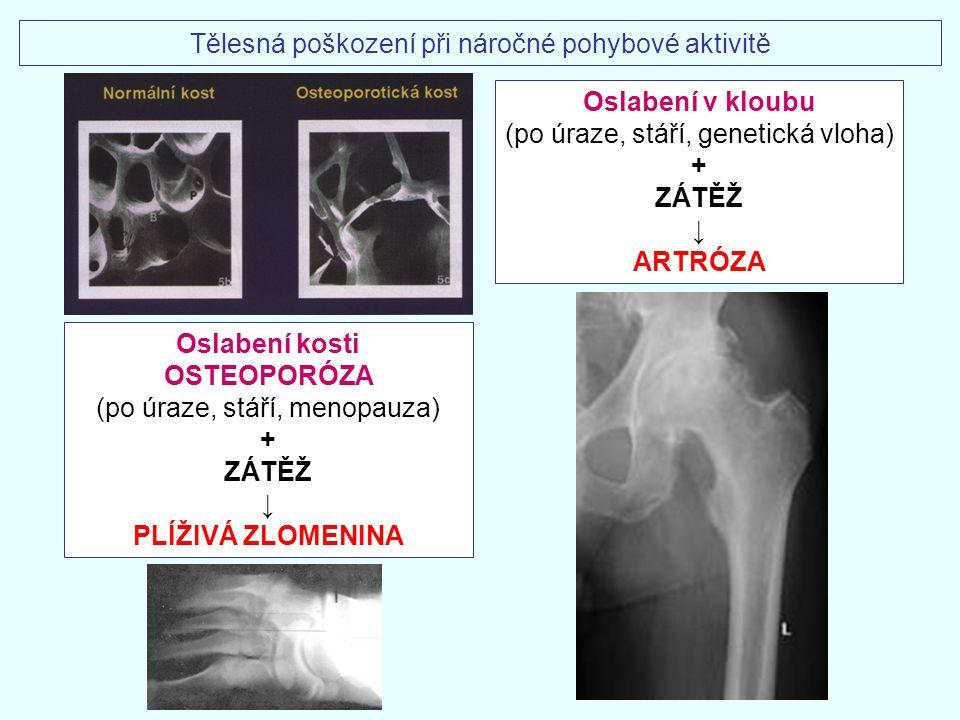 Tělesná poškození při náročné pohybové aktivitě