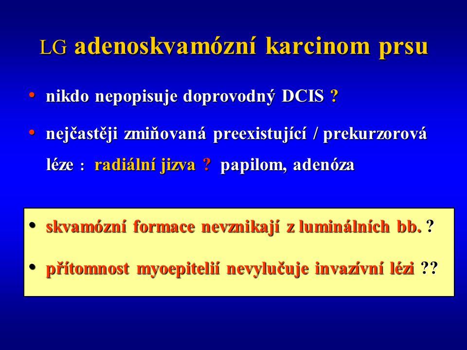 LG adenoskvamózní karcinom prsu