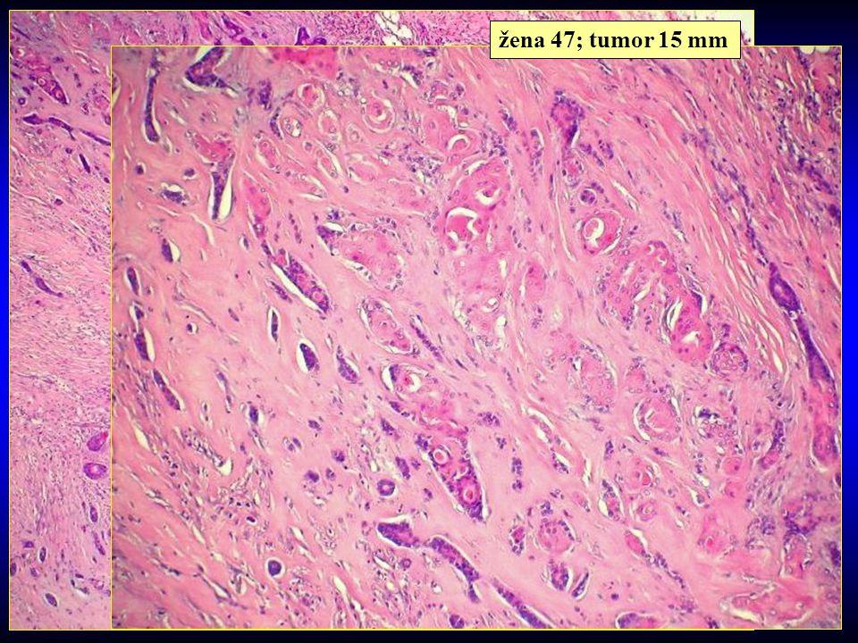 žena 47; tumor 15 mm