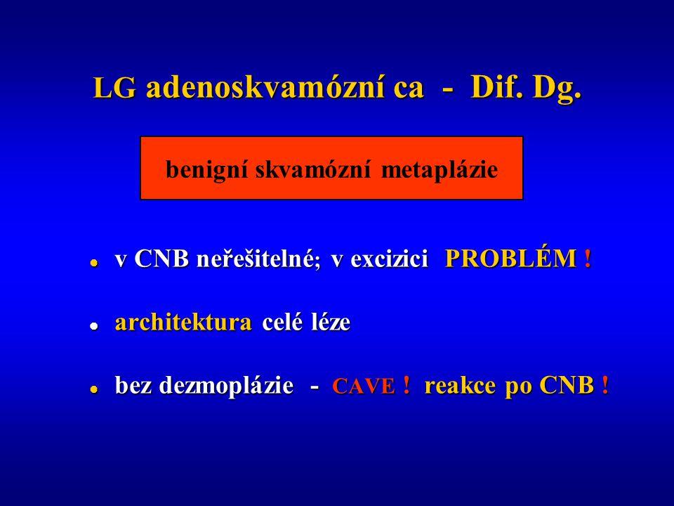 LG adenoskvamózní ca - Dif. Dg.