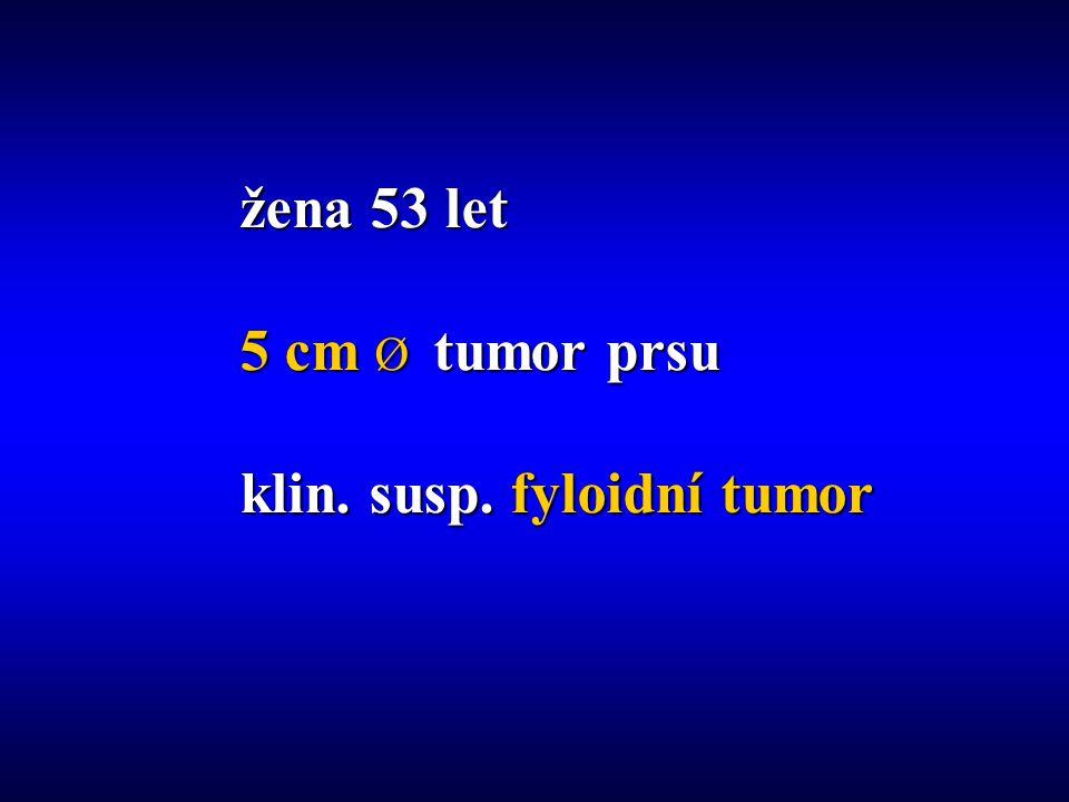 žena 53 let 5 cm Ø tumor prsu klin. susp. fyloidní tumor