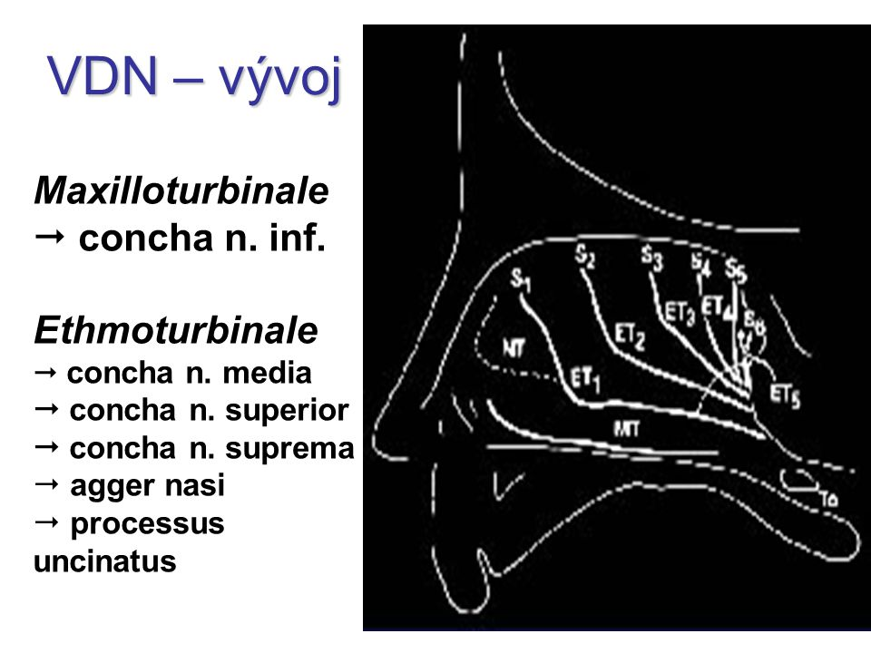 VDN – vývoj Maxilloturbinale  concha n. inf. Ethmoturbinale