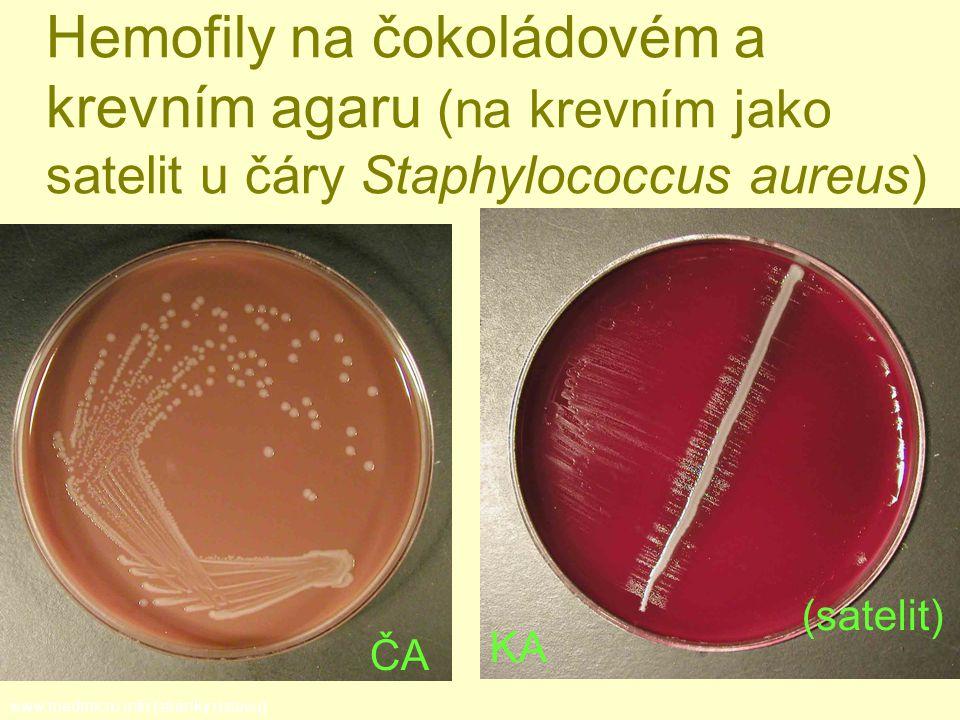 Hemofily na čokoládovém a krevním agaru (na krevním jako satelit u čáry Staphylococcus aureus)