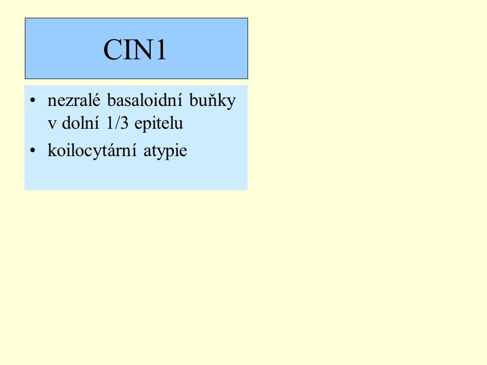 CIN1 nezralé basaloidní buňky v dolní 1/3 epitelu koilocytární atypie