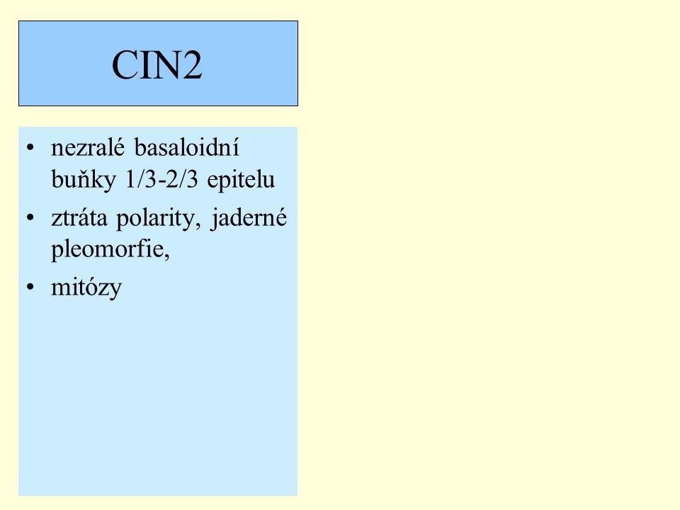 CIN2 nezralé basaloidní buňky 1/3-2/3 epitelu