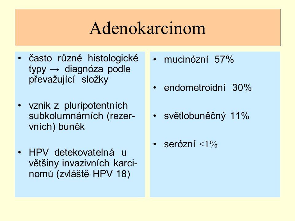 Adenokarcinom často různé histologické typy → diagnóza podle převažující složky. vznik z pluripotentních subkolumnárních (rezer-vních) buněk.