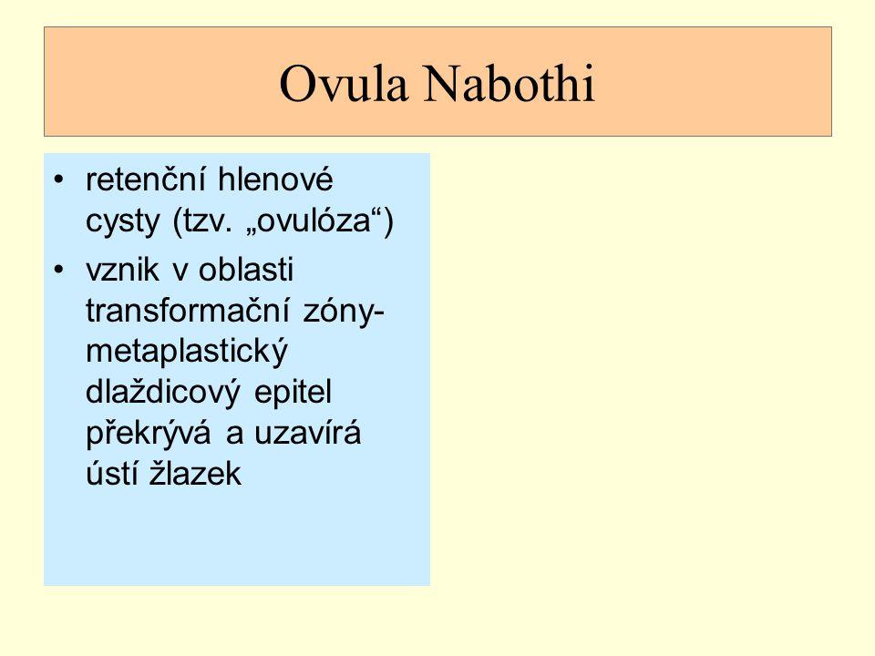 """Ovula Nabothi retenční hlenové cysty (tzv. """"ovulóza )"""
