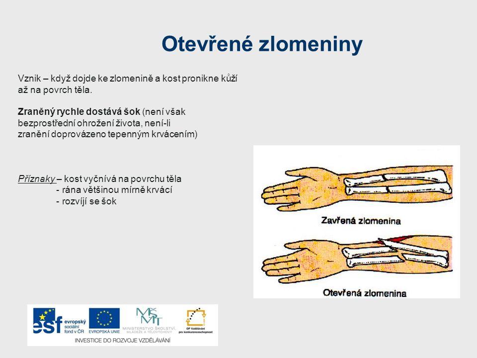 Otevřené zlomeniny Vznik – když dojde ke zlomenině a kost pronikne kůží až na povrch těla.