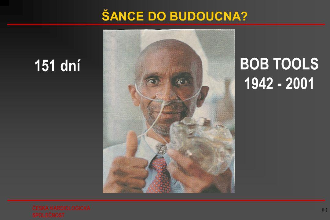ŠANCE DO BUDOUCNA 151 dní BOB TOOLS 1942 - 2001