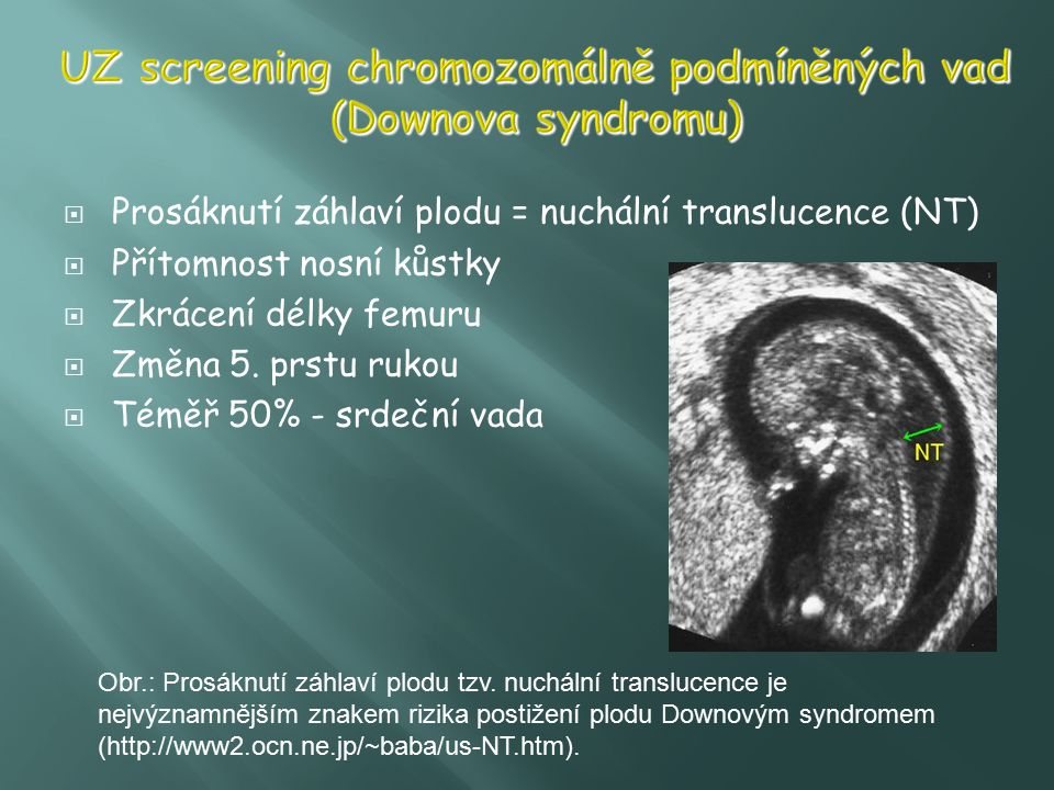 UZ screening chromozomálně podmíněných vad (Downova syndromu)
