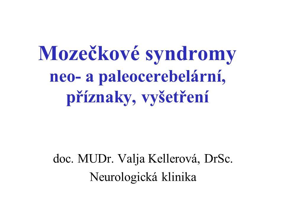 Mozečkové syndromy neo- a paleocerebelární, příznaky, vyšetření