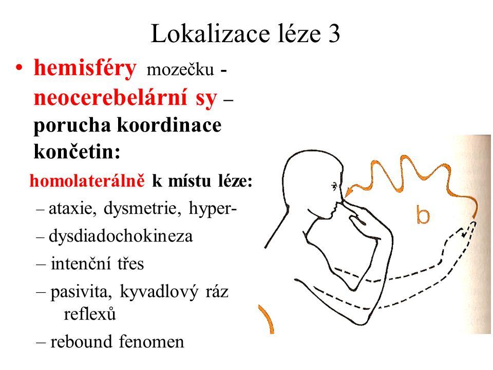 Lokalizace léze 3 hemisféry mozečku - neocerebelární sy – porucha koordinace končetin: homolaterálně k místu léze: