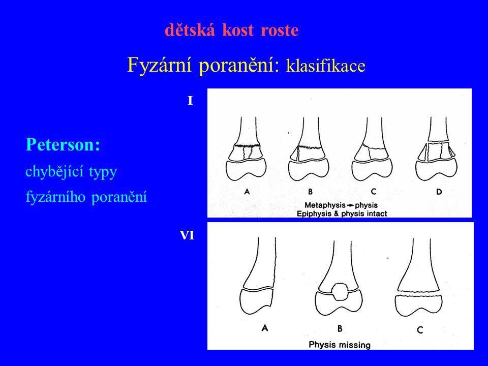 Fyzární poranění: klasifikace