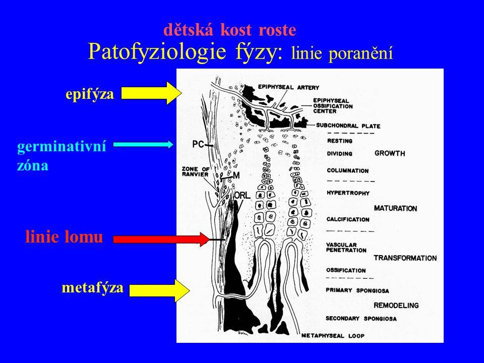 Patofyziologie fýzy: linie poranění