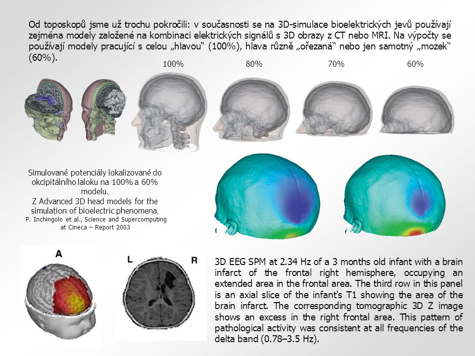 """Od toposkopů jsme už trochu pokročili: v současnosti se na 3D-simulace bioelektrických jevů používají zejména modely založené na kombinaci elektrických signálů s 3D obrazy z CT nebo MRI. Na výpočty se používají modely pracující s celou """"hlavou (100%), hlava různě """"ořezaná nebo jen samotný """"mozek (60%)."""
