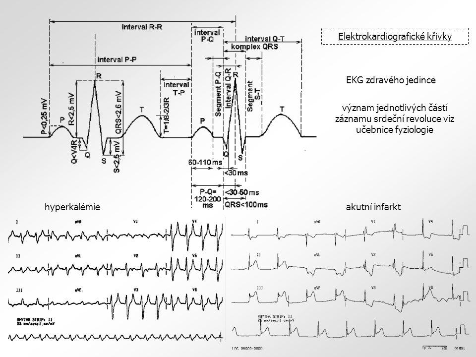 Elektrokardiografické křivky