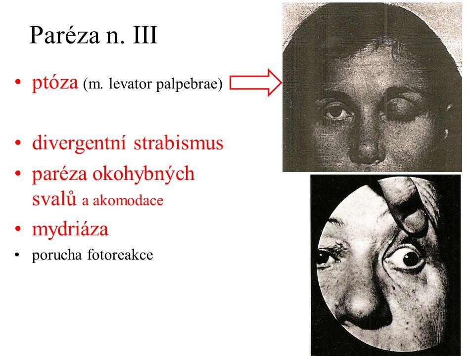 Paréza n. III ptóza (m. levator palpebrae) divergentní strabismus