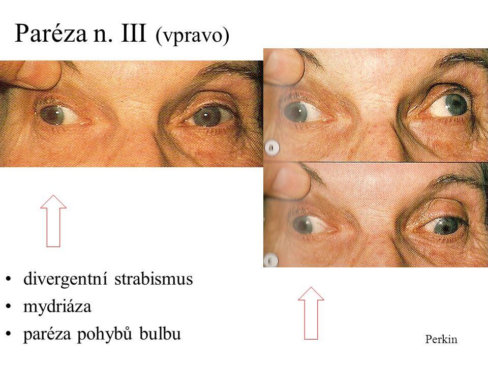 Paréza n. III (vpravo) divergentní strabismus mydriáza