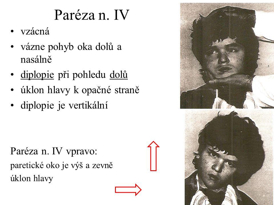 Paréza n. IV vzácná vázne pohyb oka dolů a nasálně